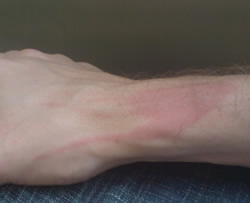 Burnt Arm